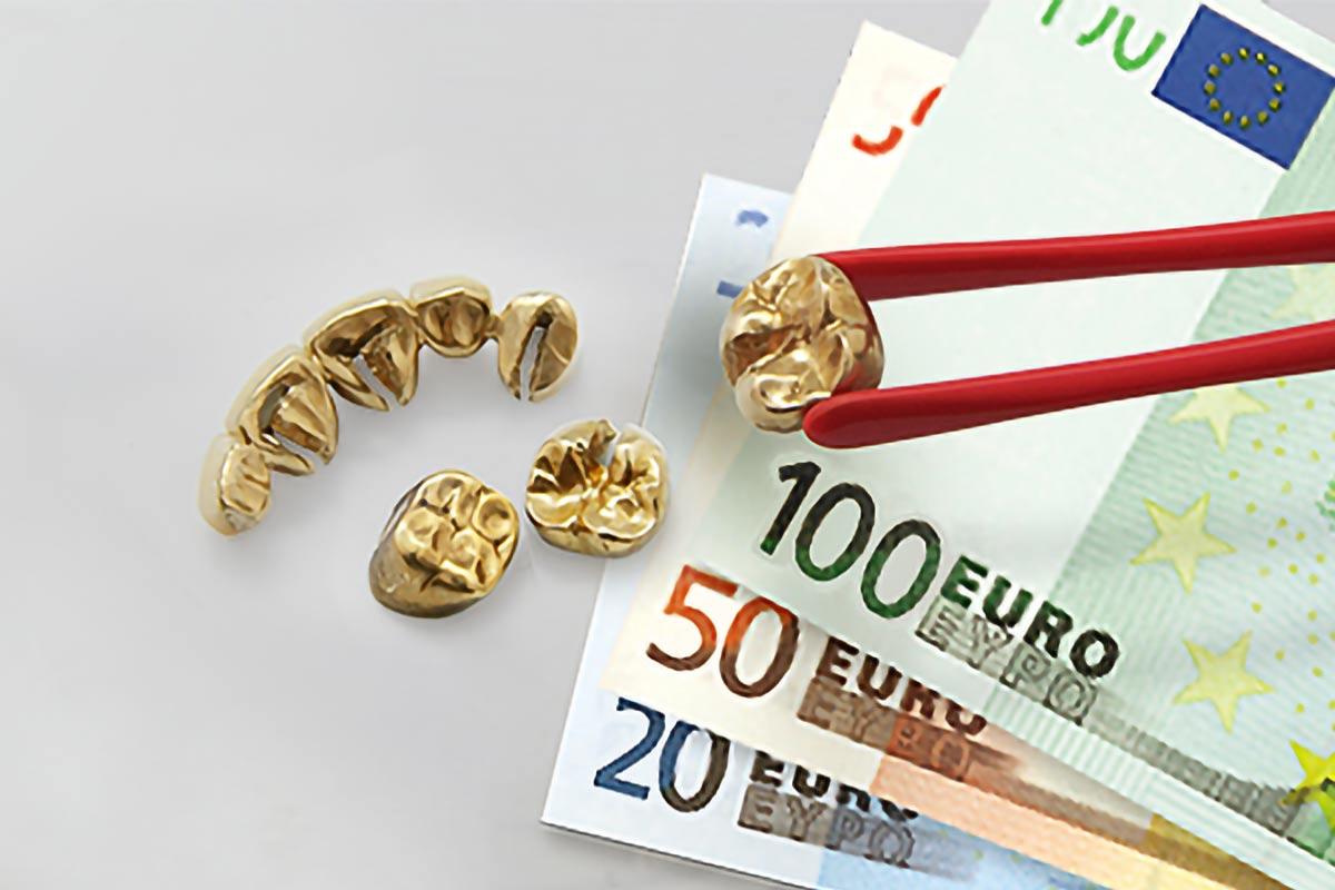 Zahngold verkaufen: Wie? Wo? Wer zahlt den besten Preis?